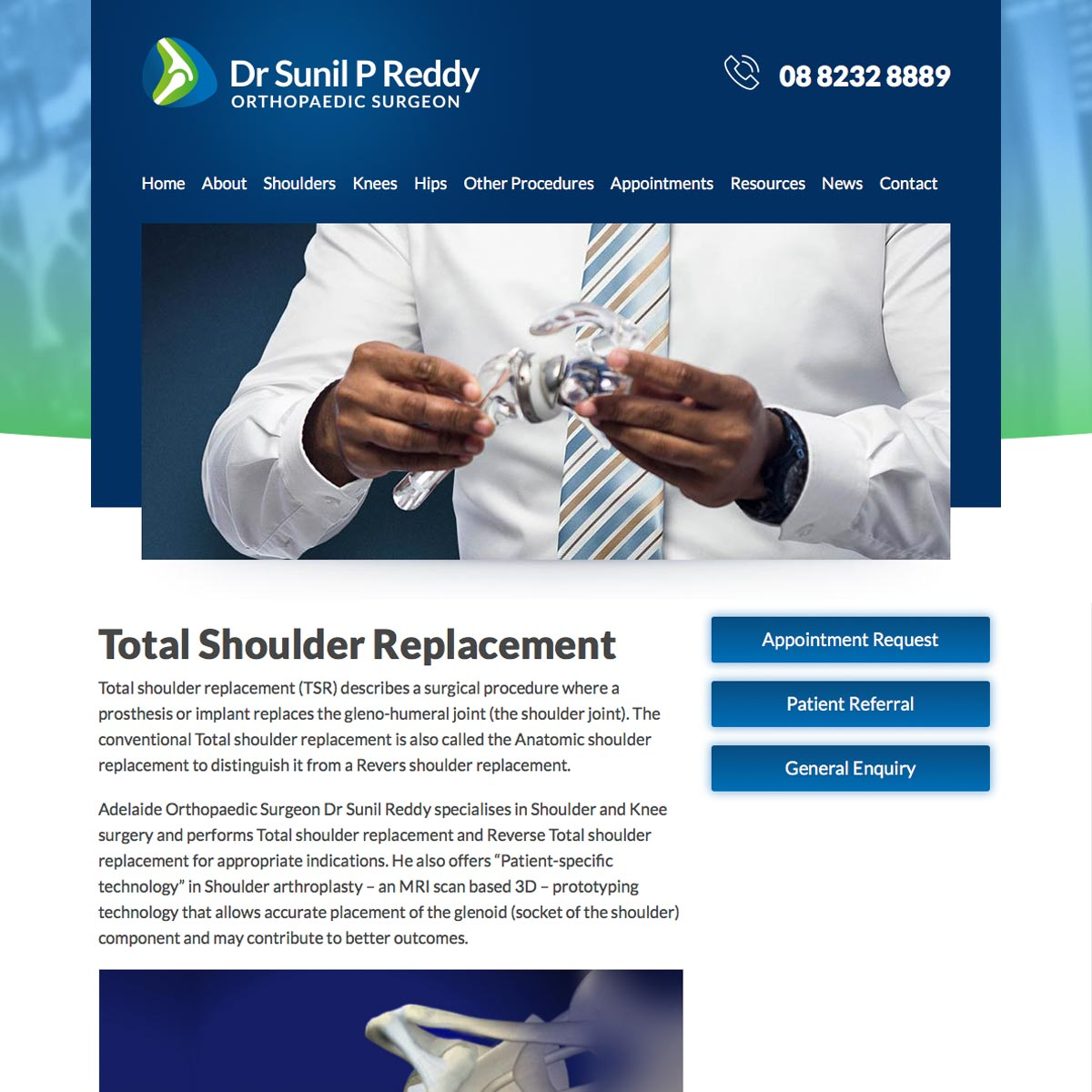 Dr Sunil Reddy - Total Shoulder Replacement