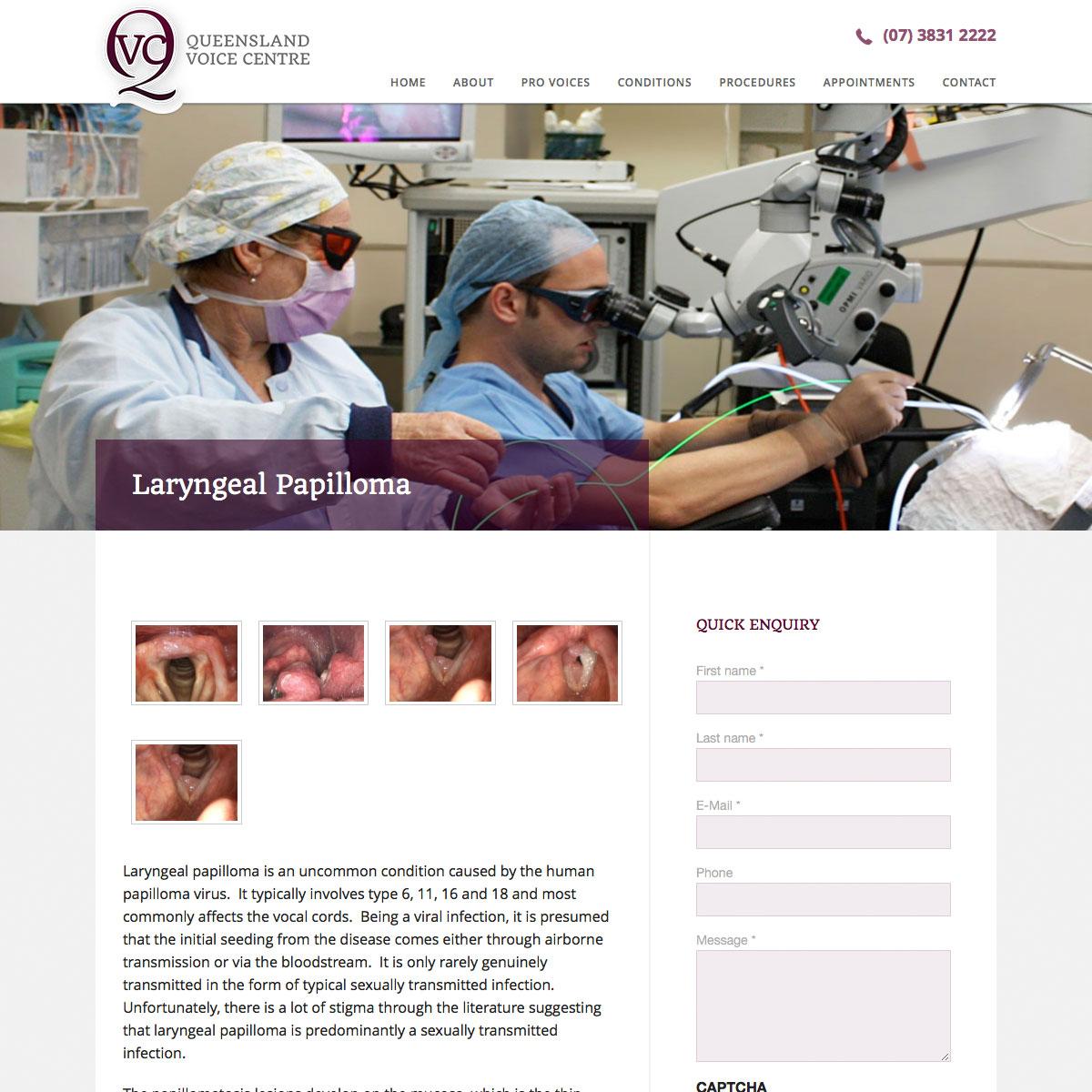 ENT Doctors Laryngeal Papilloma