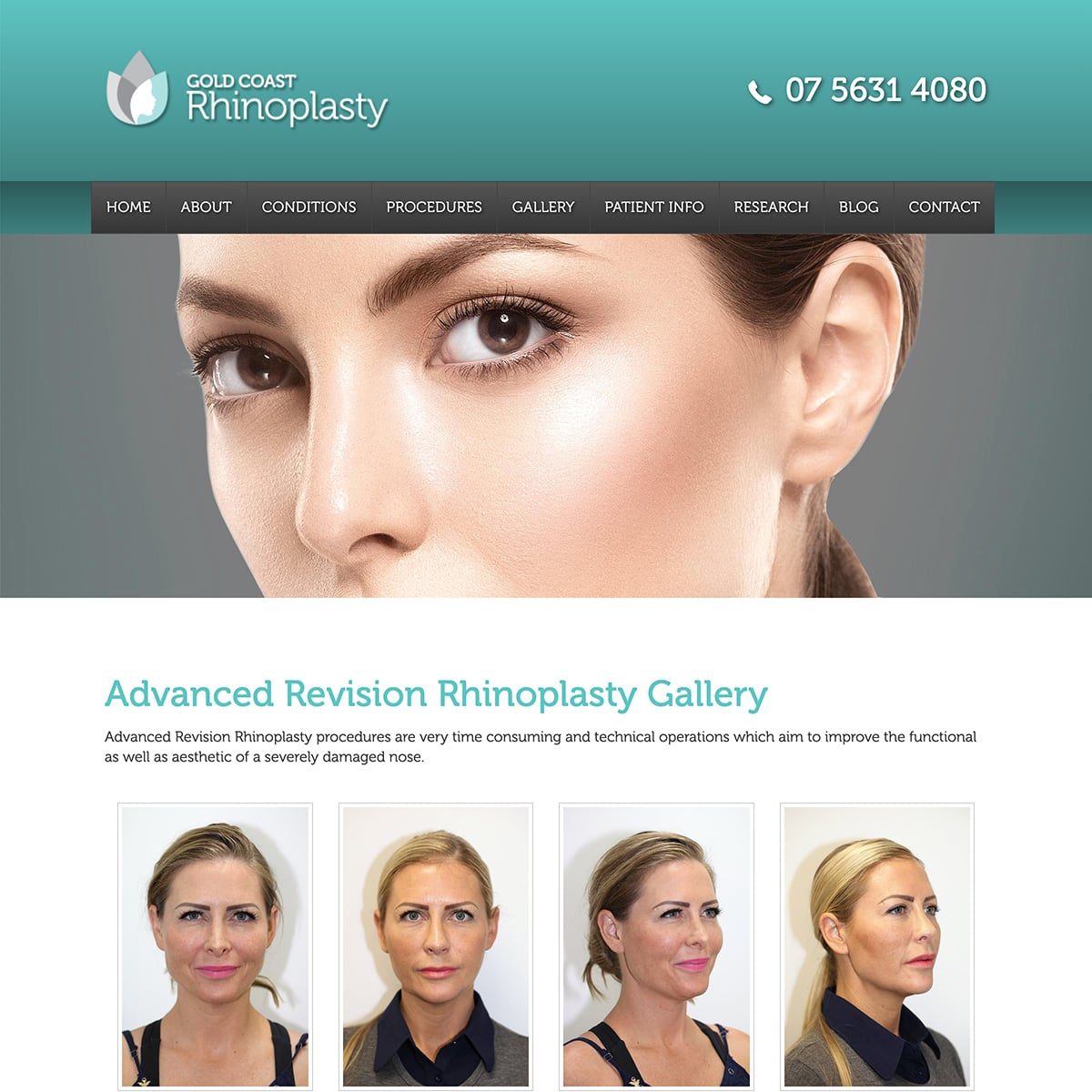 Gold Coast Rhinoplasty - Gallery Main Page