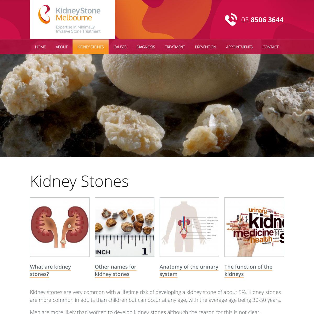 Kidney Stone Melbourne - Kidney Stones
