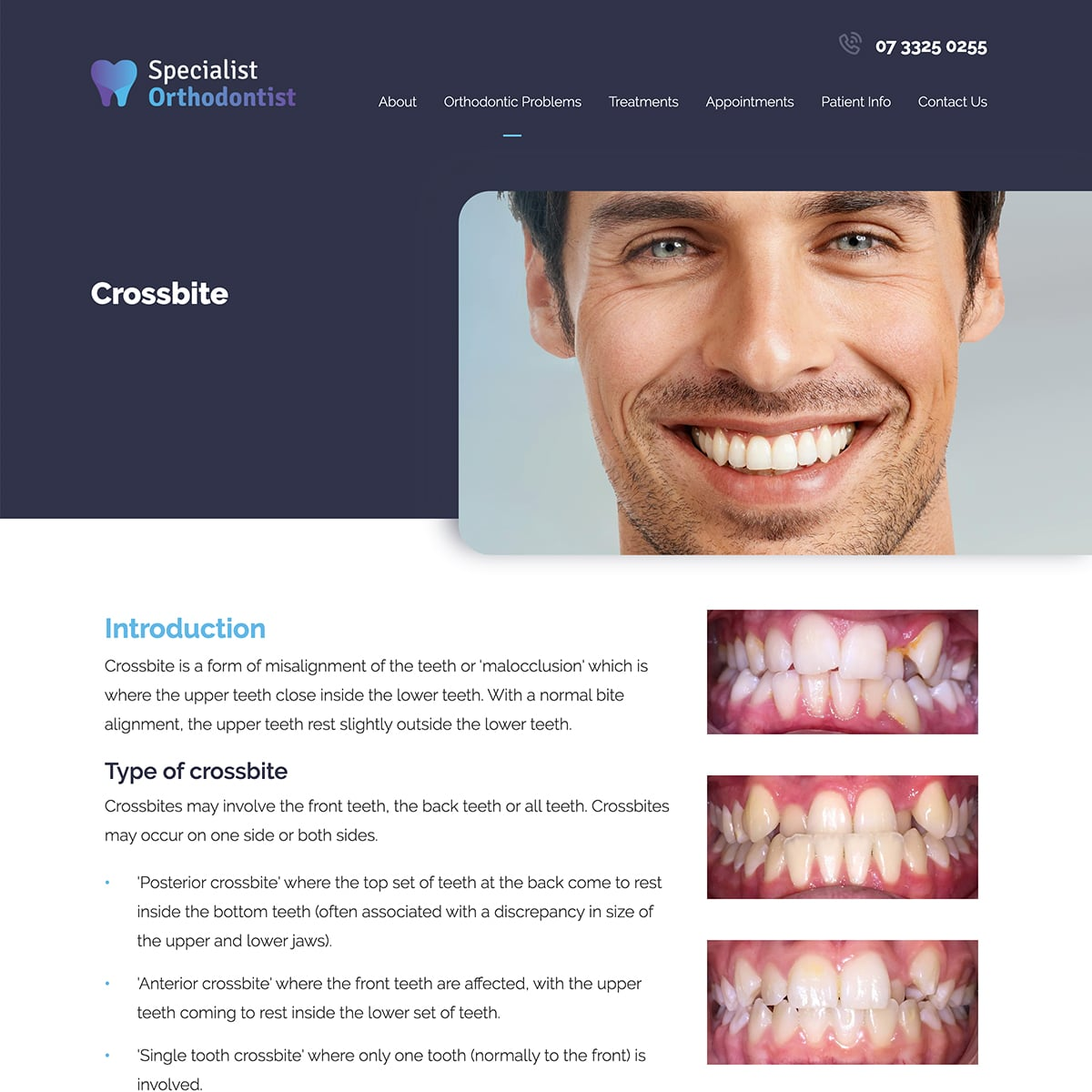 Specialist Orthodontist - Orthodontic Problems